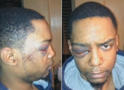 Taj Patterson said he was brutally beaten by a gang of Hasidic Jews on December 1 in Bed-Stuy